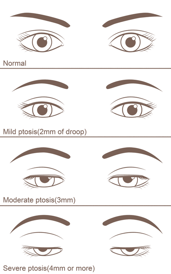 degrees of ptosis