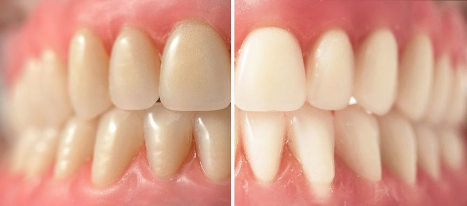 Discolored teeth on the left and a brightened smile on the right