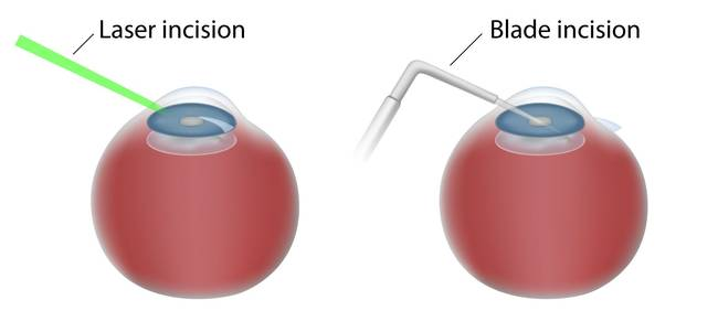 Graphic depicting laser and manual cataract surgery