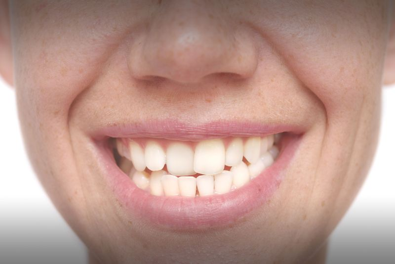 Smiling patient with crooked teeth