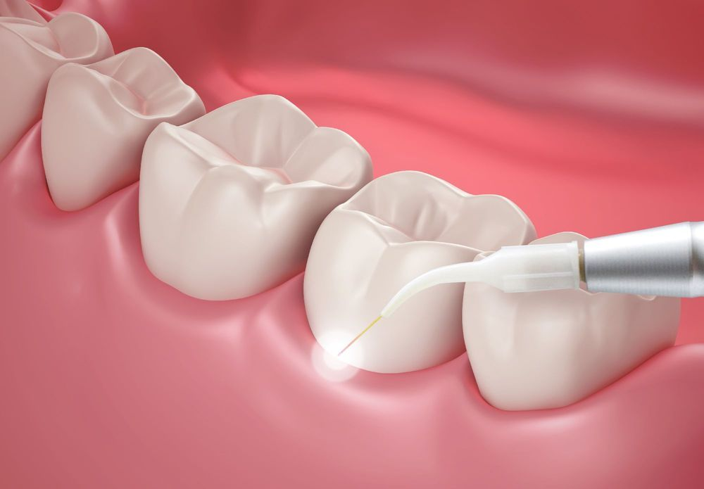 Laser dentistry being performed on teeth and gums.