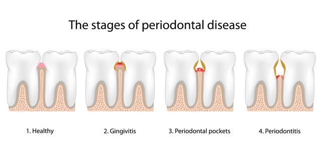 Illustration of the stages of periodontal disease