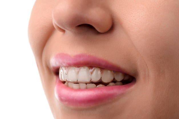 Photo of a smile with clear aligner trays