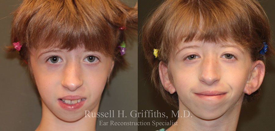 Before and After: One-stage microtia ear reconstruction surgery with MEDPOR frontal view.