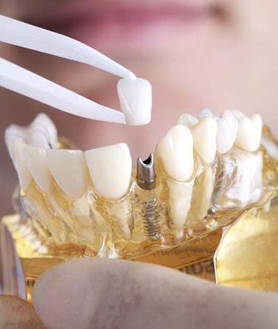 A dental implant mold.
