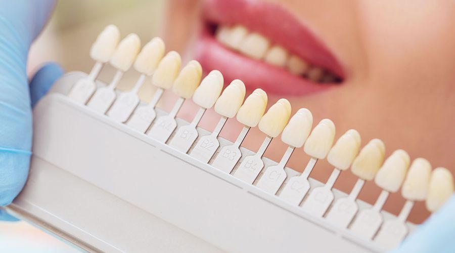 A shade guide used in teeth whitening treatment.