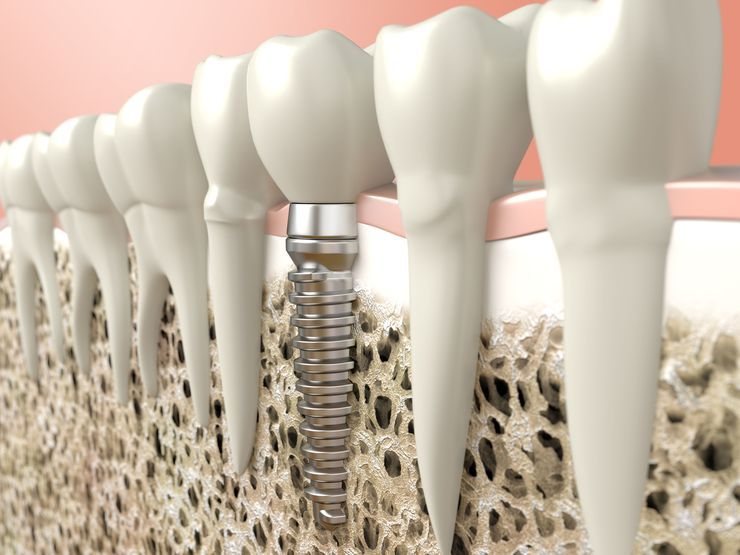 An illustration of dental implants