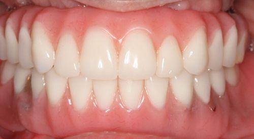 A patient after dental implant treatment