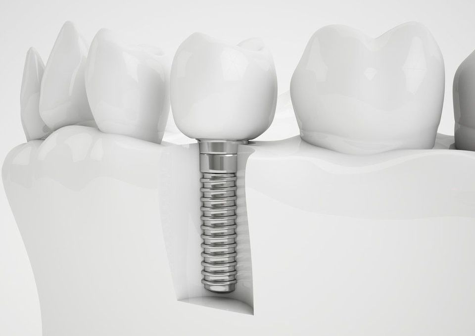 Graphic displaying implant secured into jaw