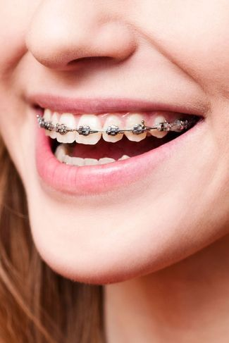Image of orthodontics treatment