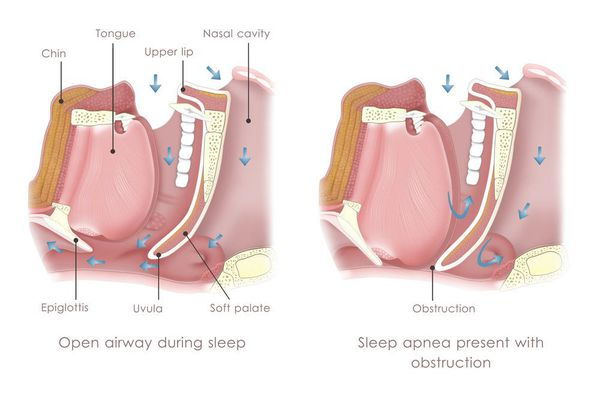 Illustration of normal airway vs. sleep apnea