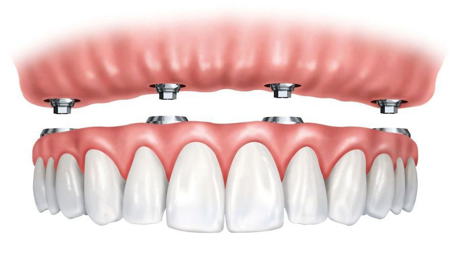 Illustration for all-on-4® implants