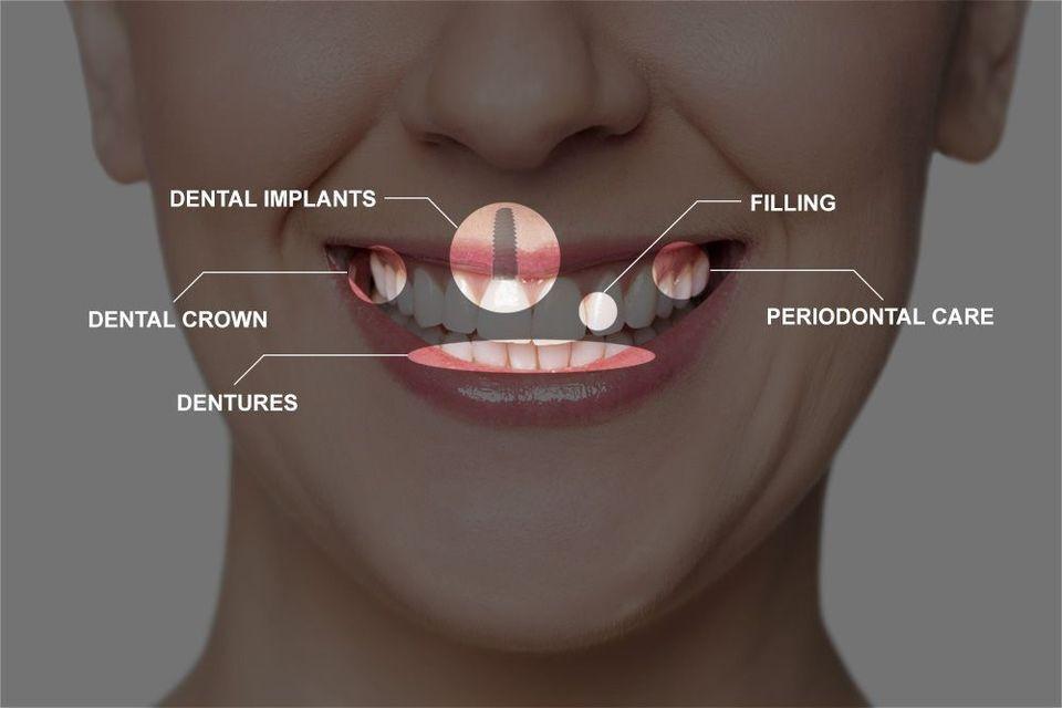 a diagram of multiple dental procedures