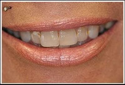 Before porcelain veneers treatment