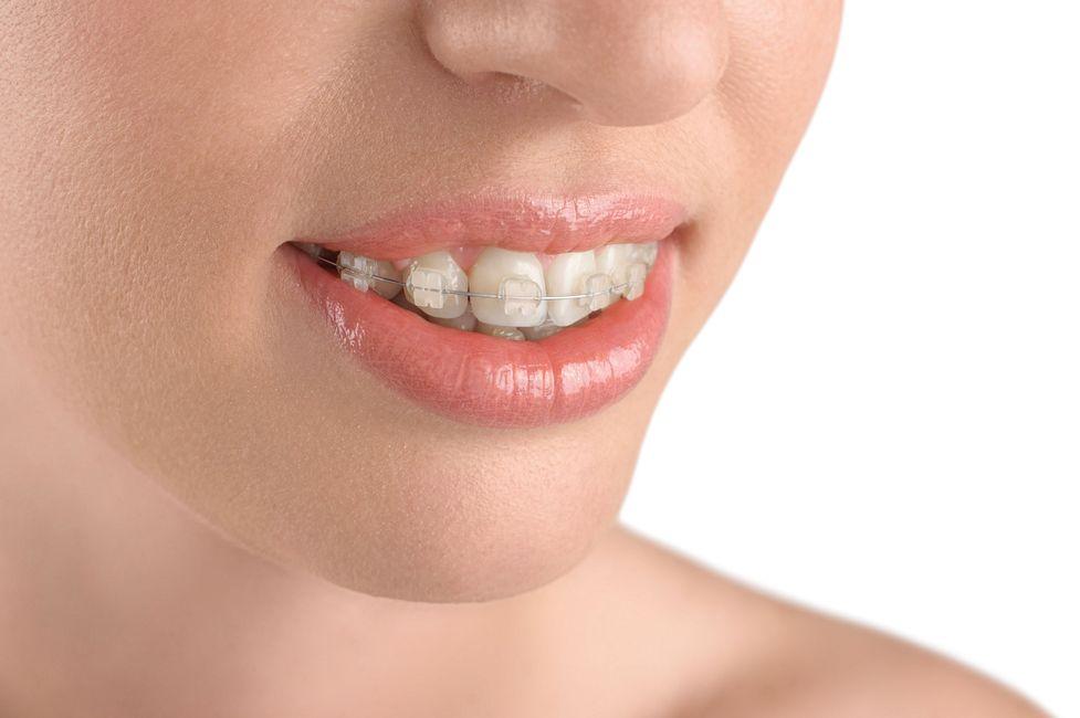 Woman wearing ceramic braces.