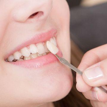 Dentist placing a porcelain veneer on top of natural teeth
