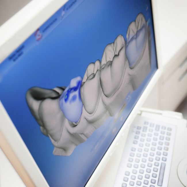 Monitor showing dental software