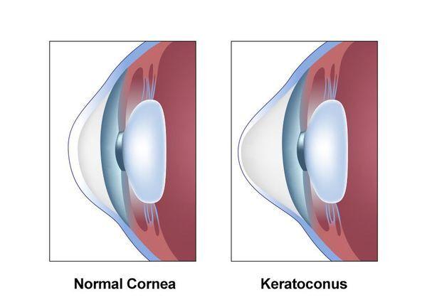 Illustration of normal eye vs. eye with keratoconus