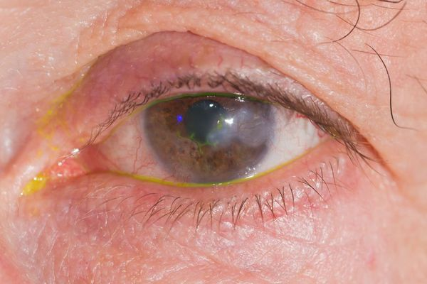 Close up of inflamed cornea