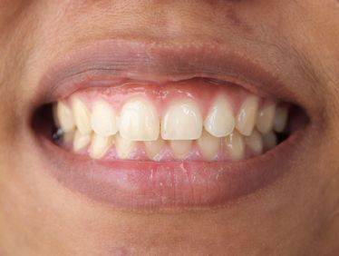 Close up of a smile with low gums