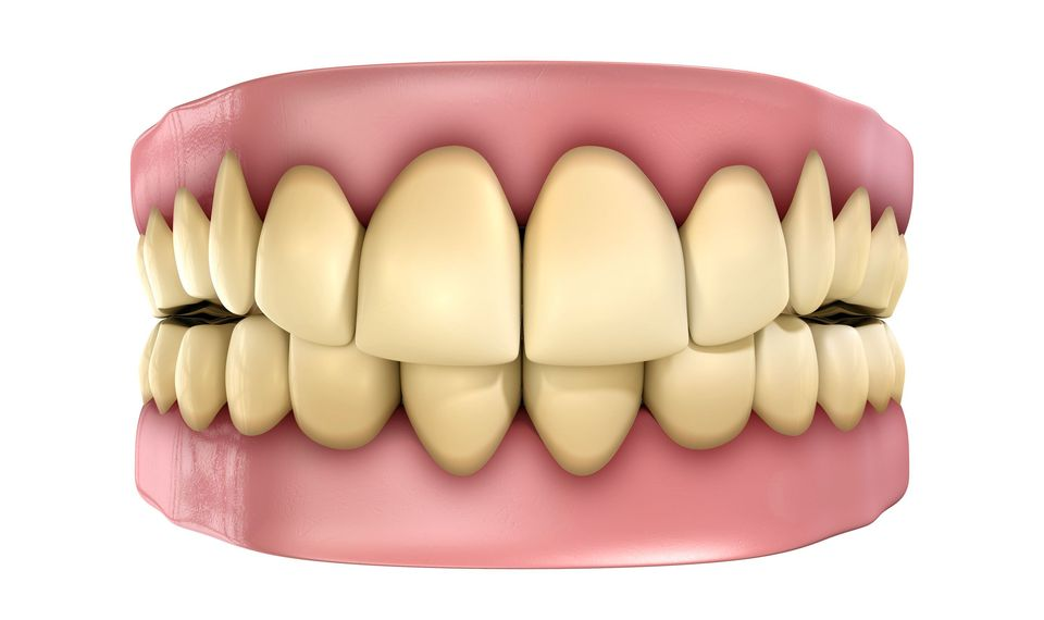 An illustration of teeth that are discolored.