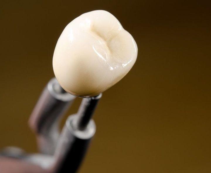 A single dental crown