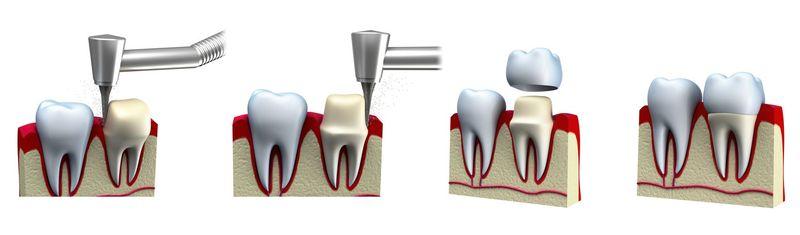 Illustration of steps in placing a dental crown