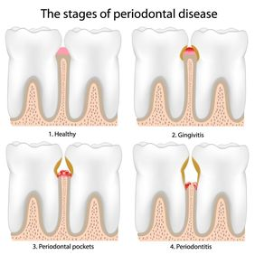 Illustration showing four stages of periodontal disease