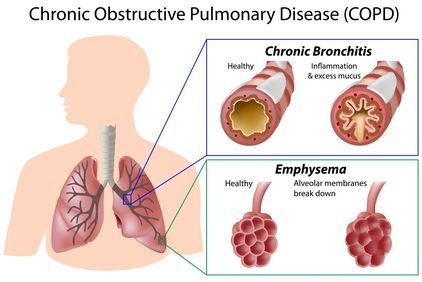 Illustration highlighting the effects of chronic obstructive pulmonary disease