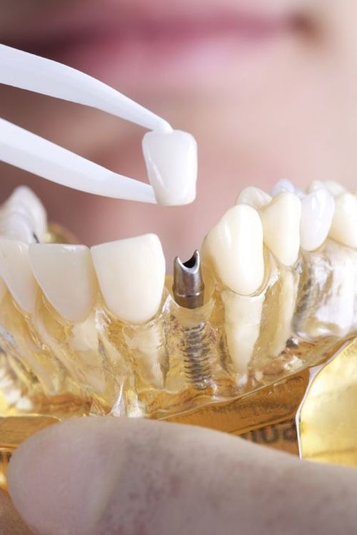 Photo of a dental restoration over a dental implant