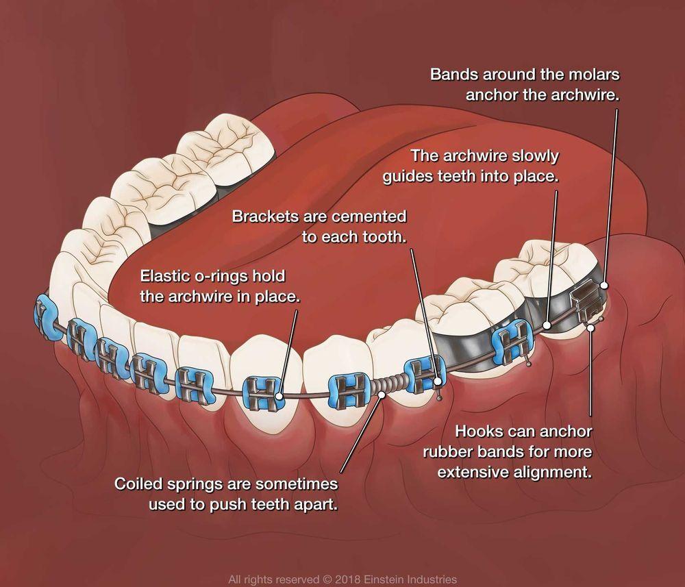 Illustration of braces