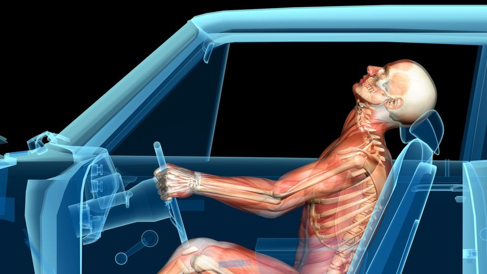 Illustration of a human body in an accident