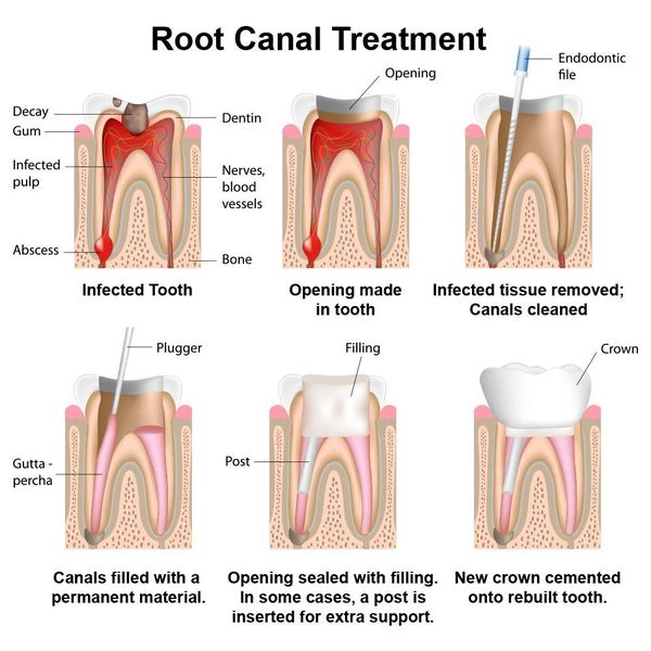 An illustration of root canal therapy