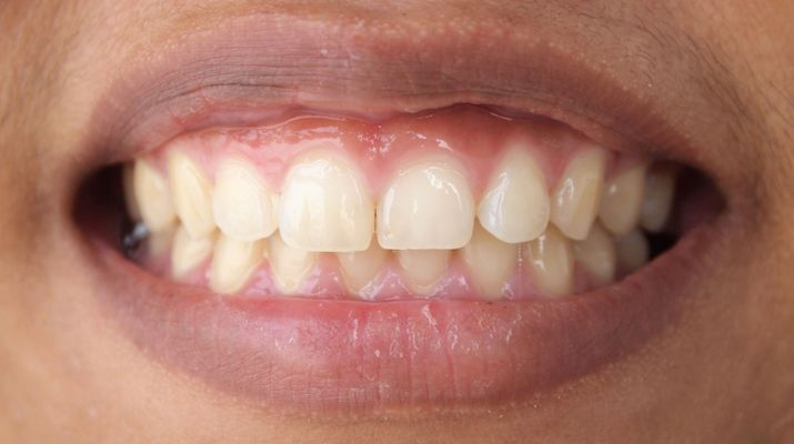 Close-up of male patient's smile.