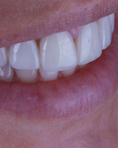 Close-up of porcelain veneers.
