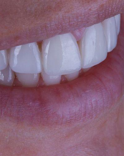 Close-up of porcelain veneers.