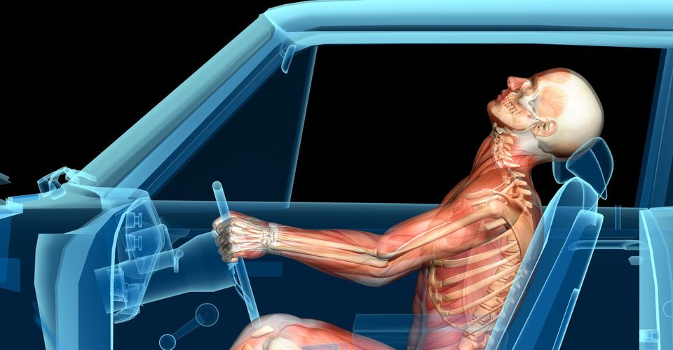 Illustration of driver sustaining a whiplash injury