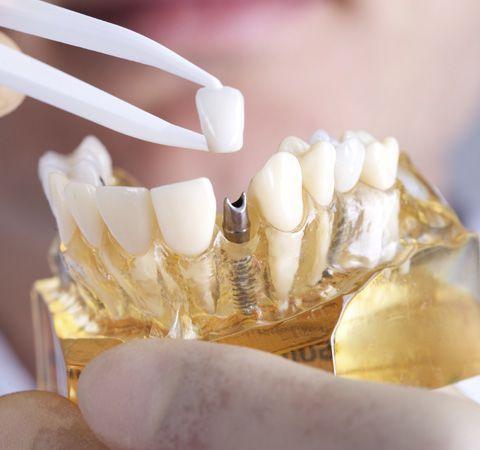 A dental model with a dental implant
