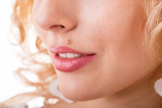Close up of a woman's face before vascular skin lesion removal