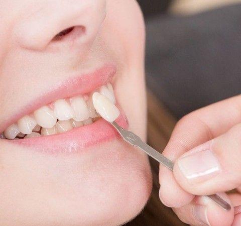 Veneer held against woman's tooth