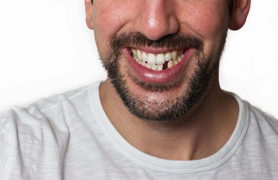 image of missing tooth