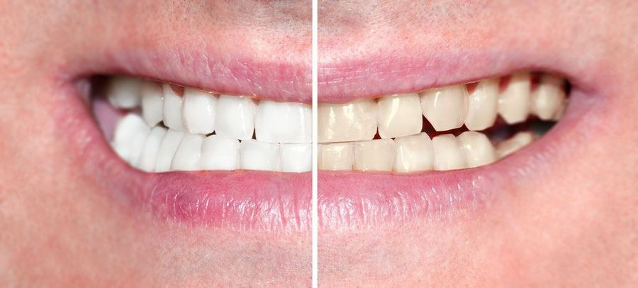 Close-up of a smile makeover, before and after.
