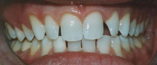 Porcelain veneers patient before picture