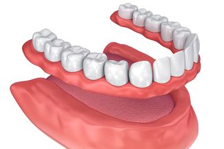 Illustration of lower denture