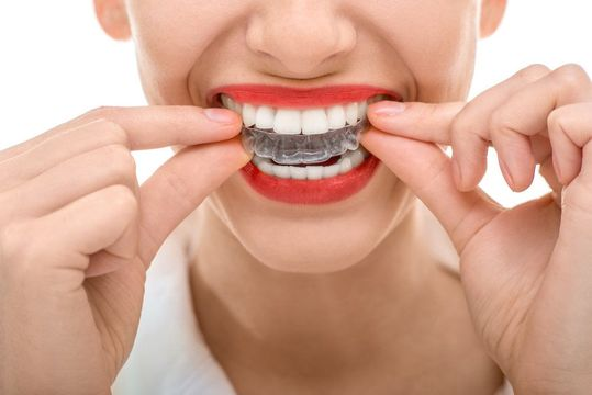 Woman wearing red lipstick putting clear aligner tray over her top teeth