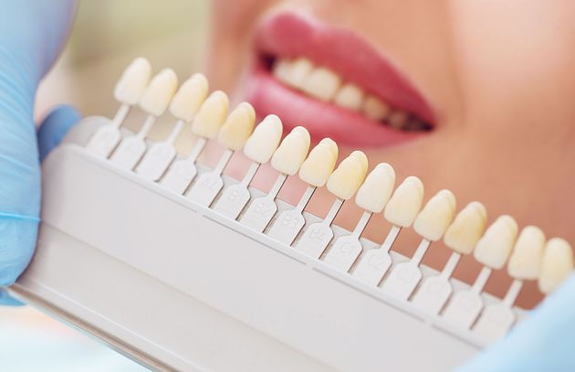 Comparing shades of teeth with a patient's smile