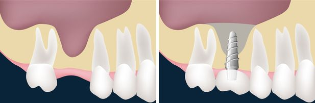An illustrated example of an upper jawbone before and after a sinus lift