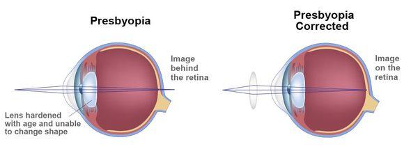 illustration of presbyopia and correction