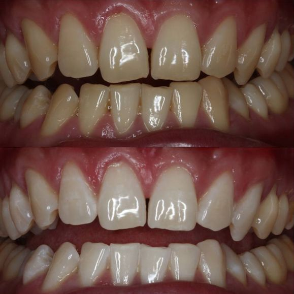 Before and after teeth whitening treatment.