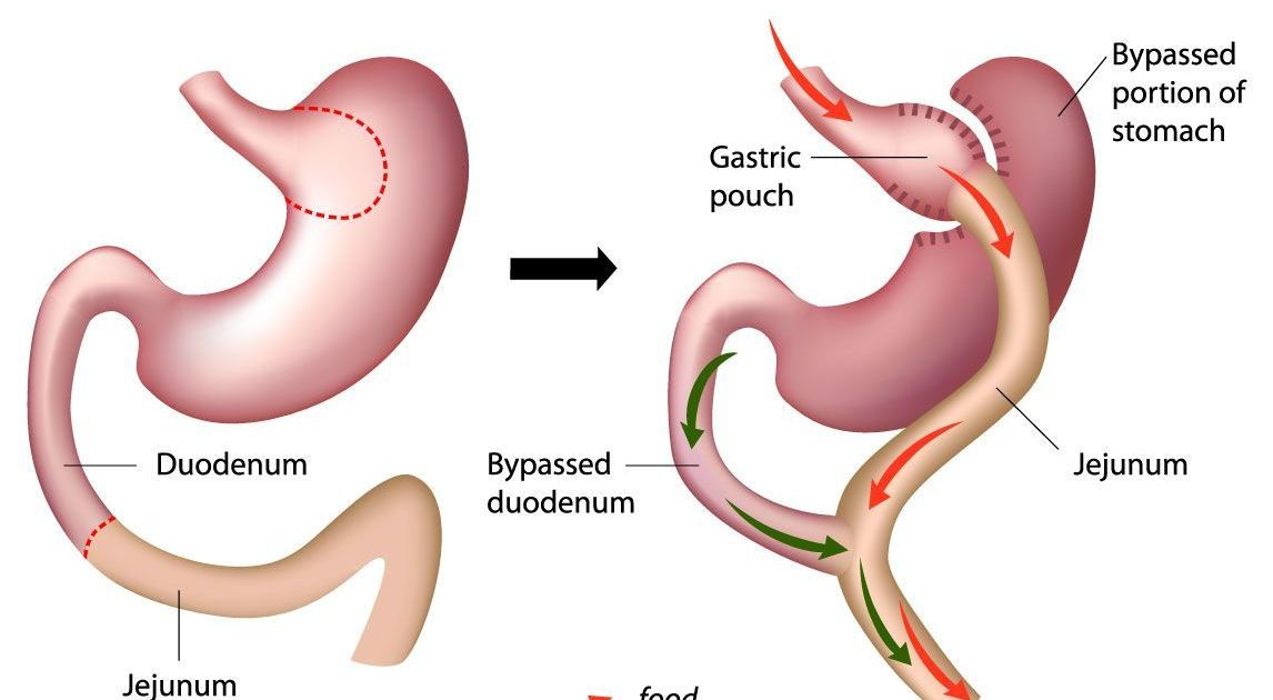 Safe Affordable Gastric Bypass Surgery In Tijuana Mexico